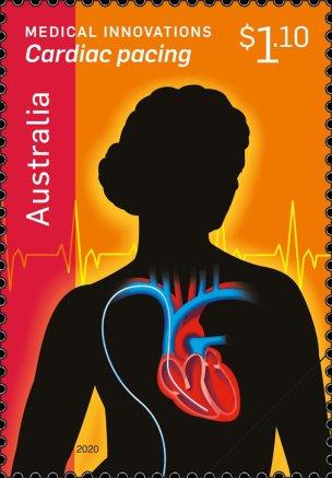 Cardiac-Pacing